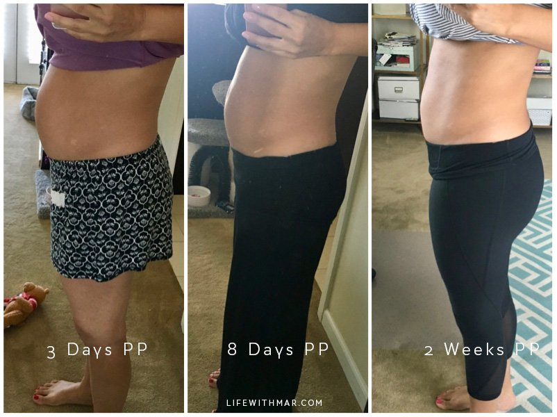Bellefit postpartum girdle before and after results. Click to read the full review and see what I liked and didn't!